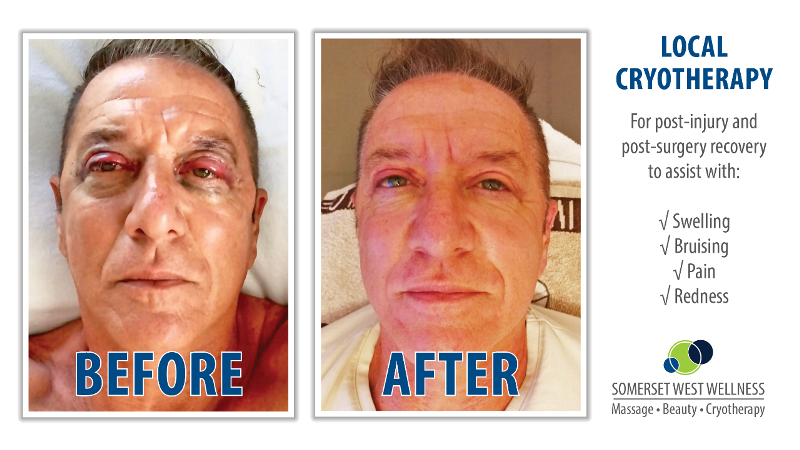 Cryotherapy Before & After Blepharoplasty Surgery